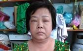 鍾寶絲家境貧困又不幸受了重傷。