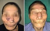 左起:接受整形手術前與後的皮膚癌患者阿Q。
