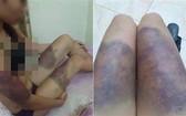 遭非法扣押毆打的孕婦阿Y遍體鱗傷。(圖源:Vietnamnet)