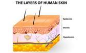 皮膚分表皮和真皮,底下有皮下組織。(圖源:互聯網)