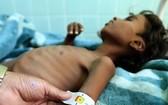 也門薩那,一名罹患營養不良的兒童正在醫院接受治療。(圖源:兒基會)