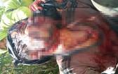 傷者胡文會遭野熊攻擊,傷勢十分嚴重。(圖源:黃君)