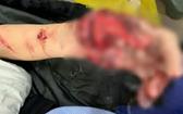 傷者獲送醫院時的手掌傷勢十分嚴重。(圖源:院方提供)