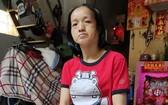 鄒月女的腫塊變大又痛,導致她呼吸、說話都很困難。
