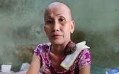 吳玉鳳接受化療後,腫瘤開始變小了。
