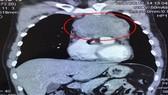 Ảnh chụp CT khối u (khoanh đỏ) trong lồng ngực bệnh nhân trước phẫu thuật