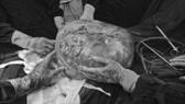 Hình khối u sau khi được đưa ra khỏi bụng