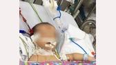 Sau sinh 3 ngày, bé sơ sinh đột ngột bỏ bú, co giật, hôn mê