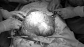 Ung thư buồng trứng giai đoạn muộn vì chủ quan