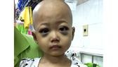 Cháu bé 4 tuổi mắc bệnh hiểm nghèo