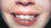 Phát hiện bệnh từ các nốt sắc tố trong miệng