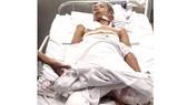 Một thanh niên nghèo bị tai nạn phải cắt bỏ 2 chân