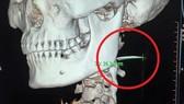 Vị trí xương cá nằm trong cổ họng bệnh nhân suốt 3 tháng. Ảnh chụp CT cổ bệnh nhân