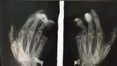 Điện thoại phát nổ khi đang sạc khiến nam thanh niên bị dập nát bàn tay