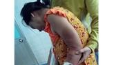 Thai phụ bị người chồng hờ đánh đập dã man.
