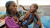 Trẻ em bị suy dinh dưỡng tại Tanout, nam Niger. Ảnh minh họa: AFP/TTXVN