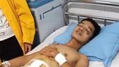 Hai chị em côi cút bị thương nặng