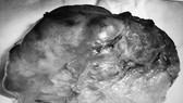 Khối u sau khi được lấy ra khỏi cơ thể bệnh nhân