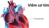 Viêm cơ tim có thể do nhiều loại virus, vi khuẩn gây ra