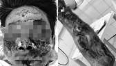 Bệnh nhân K. bị tổn thương nghiêm trọng vùng mặt và tay sau khi đốt pháo tự chế