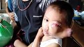 Hộ nghèo dân tộc Jrai có 3 con bệnh nặng