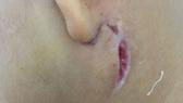 Biểu hiện bên ngoài của bệnh Whitmore của một bệnh nhân nhi đang điều trị tại Bệnh viện Sản nhi Nghệ An