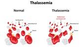 Nguy cơ mắc Thalassemia do thiếu máu, thừa sắt