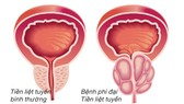 Bí kíp Dứt điểm phì đại tiền liệt tuyến không cần phẫu thuật