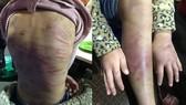Hà Nội: Xử nghiêm vụ bé gái bị bạo hành, xâm hại tình dục