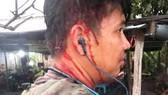 Một thanh niên bị chủ quán hành hung sau khi vào một quán ăn ở xã Nhựt Chánh, huyện Bến Lức (Long An)