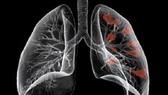Hơn 40% bệnh nhân ung thư mắc bệnh vì chủ quan