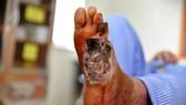 Một bệnh nhân  đái tháo đường  bị biến chứng bàn chân tăng nặng