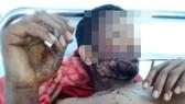 Y Trang Niê bị trúng đạn đang được điều trị tại Trung tâm Y tế huyện Cư M'gar