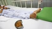 Bé trai 11 tuổi bị tắc hậu môn do nuốt hơn 70 gram hạt sơ ri