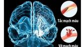 ĐBSCL: Mỗi năm có hơn 10.000 trường hợp đột quỵ