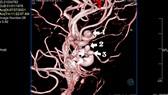 Điều trị thành công bệnh nhân có 5 túi phình mạch máu