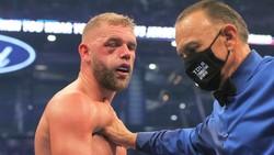 Mắt của Saunders sưng húp khi dính đòn sát thương mạnh