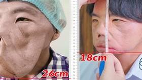 Gương mặt anh Mến sau 1 năm được bác sĩ Tú Dung điều trị thu gọn từ 26cm còn 18cm