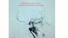 Can thiệp mạch máu não không cần gây mê