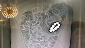 Hình chụp CT 9 viên bi trong ruột bệnh nhi. Ảnh: BV cung cấp
