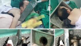 Bệnh nhân bị cuốn tay vào máy xay thịt ngập đến vai, phần tay lấy ra khỏi cối đã nát bấy