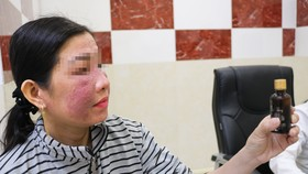 Bệnh nhân N.T.T.H bị viêm da tiếp xúc kích ứng do sử dụng mỹ phẩm trắng da cấp tốc mua trên mạng