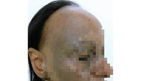 Bệnh nhân mắc bệnh lý về da và tóc hiếm gặp