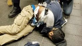 Nghi phạm Akayed Ullah bị thương nặng sau khi kích nổ quả bom ống tư chế trong đường xe điện ngầm ở Manhattan, New York, Mỹ, ngày 11-12-2017. Ảnh: AP