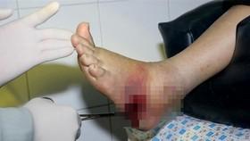Phẫu thuật kịp thời chân bị nhiễm trùng nặng