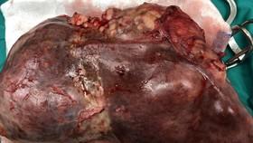 Phẫu thuật cắt thành công khối u lá lách gần 3kg