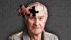 Dự án phát hiện sớm bệnh Alzheimer