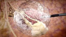 Diệt khối u bằng công nghệ nhiệt động