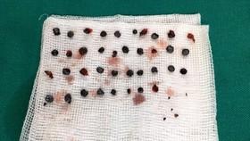 Nam thanh niên bị trúng 50 viên đạn hoa cải trong lúc ẩu đả