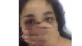 Xác minh vụ nữ sinh thực tập bị bác sĩ gạ tình, đánh đập xôn xao mạng xã hội